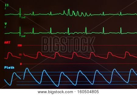 Close up of a medical monitor with the green electrocardiogram waves showing sinus rhythm with seven beats of ventricular tachycardia, the red waveform showing arterial blood pressure and the blue line showing oxygen saturation level against a black backg