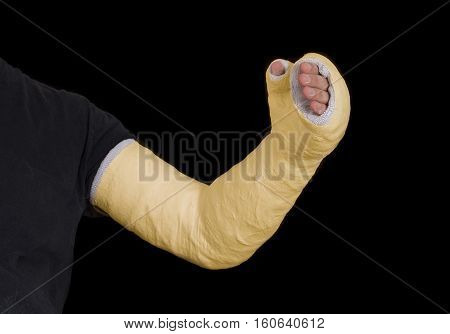 Yellow Long Arm Plaster Fiberglass Cast
