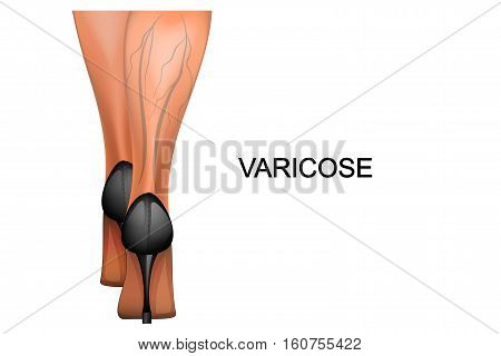 vector illustration of female legs in high heels