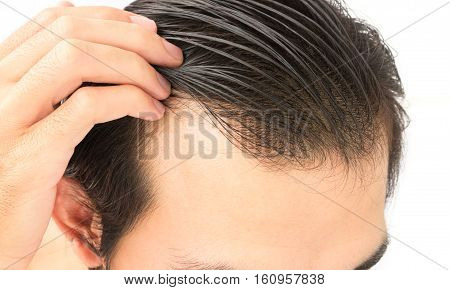 Young man worry hair loss problem for health care shampoo and beauty product concept