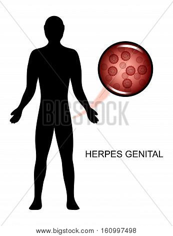 vector illustration of the virus of genital herpes in human
