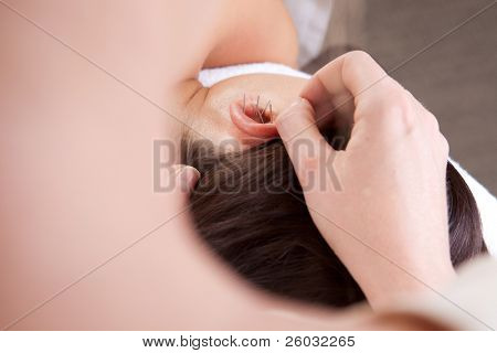 Detail view of professional acupuncturist placing needle in ear of patient