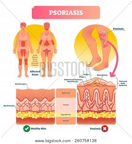 Psoriasis Vector Illustration. Autoimmune Skin Disease And Illness. Labeled Structure With Scales, P