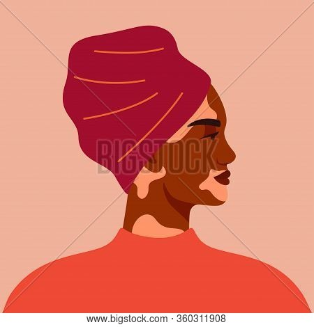 Portrait Of Black Woman With Vitiligo Wearing Turban. Avatar Of Young African Girl With Pigmentation