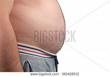 Close Up Of Man Touching His Fat Belly, Mens Hand Holding Excessive Belly Fat. Being Overweight Is O