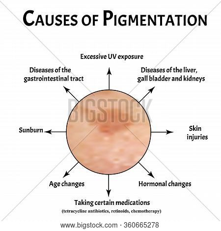 Pigmentation On The Skin Causes. Brown Spots On The Skin. Pigmentation Treatment. Infographics. Vect