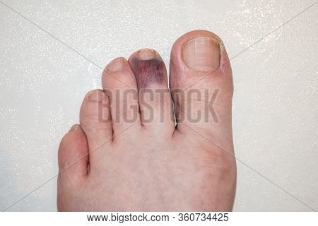 Male Adult Left Foot With Stubbed And Badly Bruised Index Toe On A White Background