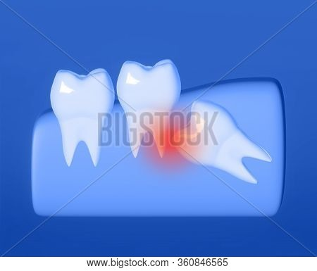 Wisdom Tooth Grows Wrong, Wisdom Tooth Problem, Horizontal Position Of The Wisdom Tooth, Impacted Wi