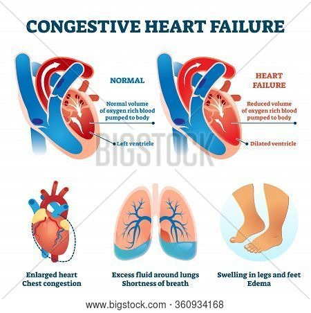 Congestive Heart Failure Vector Illustration. Labeled Medical Problem Vs Healthy Organ Comparison Sc