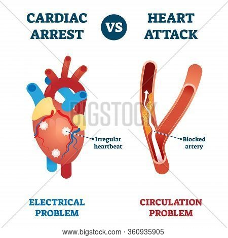 Cardiac Arrest Vs Heart Attack Vector Illustration. Labeled Health Problems Comparison - Electrical
