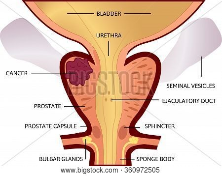Second Stage Of Prostate Cancer. The Tumor Is Big And Located In Prostate.