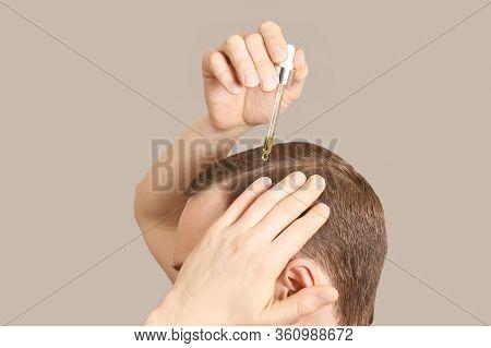 Man Baldness Treatment. Nature Hair Care Procedure. Oil Drop At Scalp. Male Person Applying Dermatol