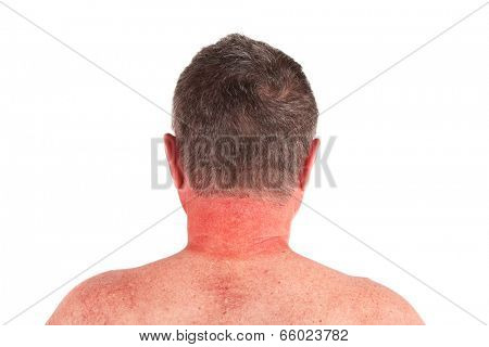 Older man with sunburned neck
