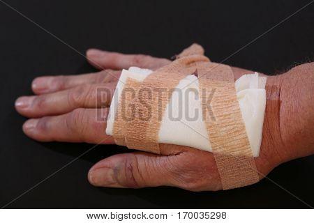 Suture wound on hand from dermatology procedure