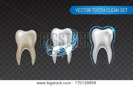 Vector Set Of 3D Realistic Clean And Dirty Tooth Isolated On Transparent Background, Clearing Tooth