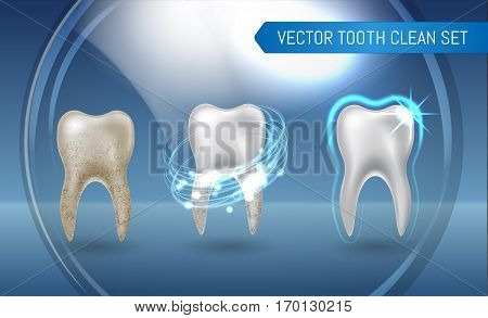 Vector Set Of 3D Realistic Clean And Dirty Tooth On Blue Background, Clearing Tooth Process. Teeth W