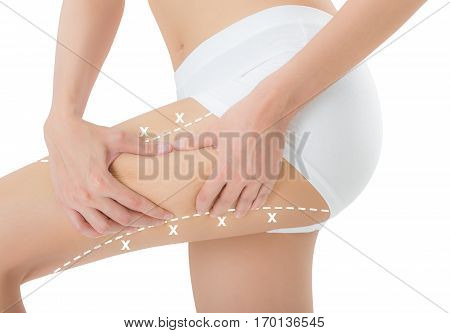woman grabbing skin on her thigh with the white color crosses marking Lose weight and liposuction cellulite removal concept Isolated on white background.