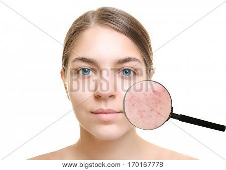 Acne and skin care concept. Young woman before and after cosmetic procedure on white background
