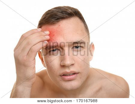 Skin care concept. Young man with acne on white background