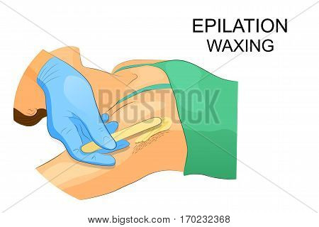 vectory illustration of waxing the hair from the armpits