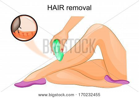 vector illustration of a hair removal epilator