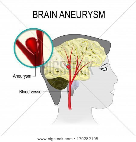 Blood vessels in the brain with aneurysm on the background of the silhouette head man. rupture blood vessel into the cerebral hemisphere causing a stroke. Human anatomy. Medical illustration