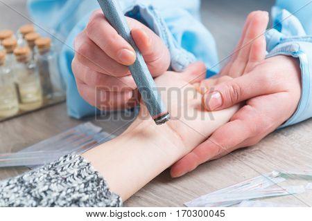 Alternative medicine therapist doing moxa treatment on her client
