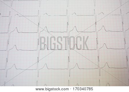 Electrocardiogram in pink paper form in hospital, close up view