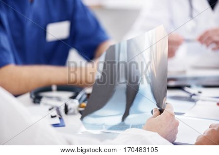 Focus on close up x-ray which therapeutic keeping in his hand during meeting in apartment of hospital