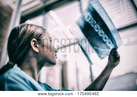 Close-up of a nurse examining X-ray report in hospital