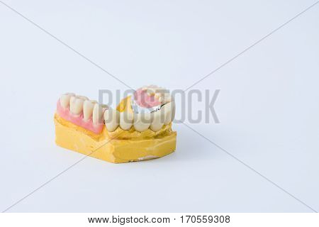 dental prosthesis example with their own model