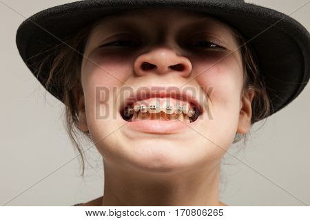 Funny girl with dental braces making grimaces