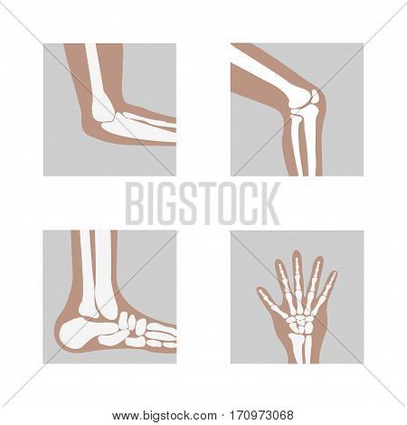 Human joints, knee joint, elbow joint, ankle joint, wrist hand . Medical orthopedic of set. illustration icon leg and hand bone - vector