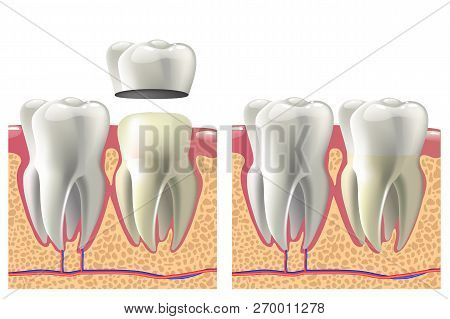 Dental Crown Installation Process. Dental Care Concept.