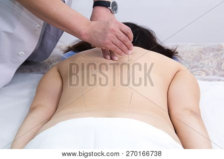 Young woman taking acupuncture treatment. Inserting needles in the back. Back view poster