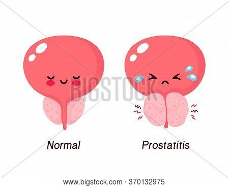 Normal Prostate And Benign Prostatic Hyperplasia. Cute Smiling Happy And Sick Unhealthy Bladder Char