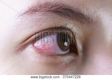 Red Bloodshot Eye Of Woman, Irritated Or Infected, Conjunctivitis Eye Or After Cry.