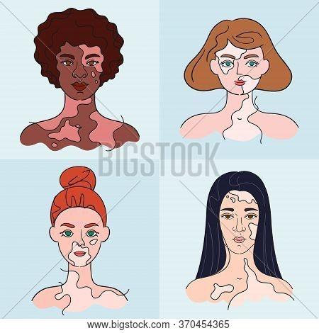 World Vitiligo Day. Women Faces Who Have Vitiligo Pigment Spots. Isolated Portraits - Vector Set. Co