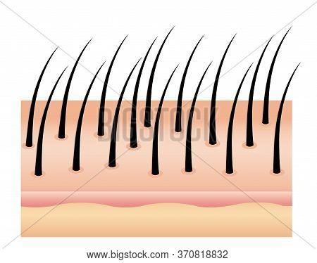 Anti Dandruff On Hair, Vector, Hair Scalp. Hair And Scalp Treatment. Hair On The Scalp For Advertise