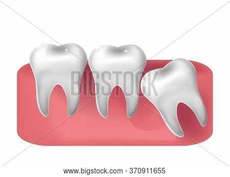 Wisdom Tooth Cut Through, 3d Realistic Style. Dentistry, Wisdom Teeth Extraction Concept. Vector Ill