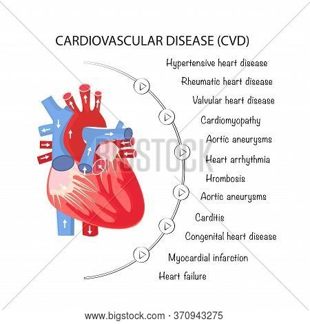 The Human Heart And All Types Of Cardiovascular Diseases. Poster For Interns And Medical Institution