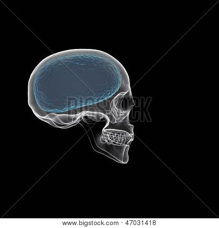 Human Brain With Skull X-ray  View