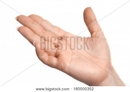 Female hand with dermatitis on white background