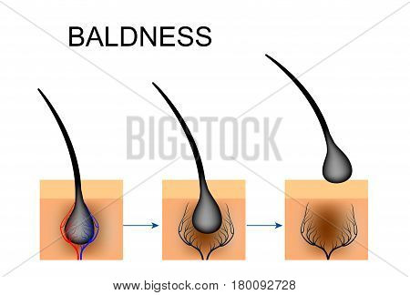 vector illustration of circulatory disorders in the hair follicle. baldness