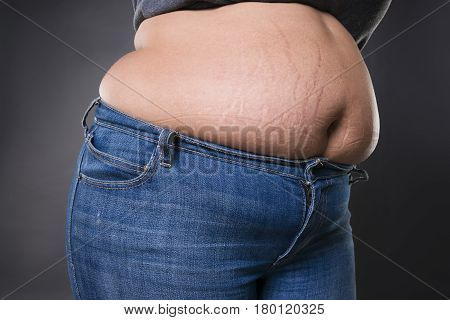 Woman with fat abdomen in blue jeans overweight female stomach stretch marks on belly closeup gray studio background