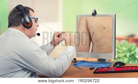 Telemedicine male dermatologist in headset looks at sebaceous cyst on back of the patient on monitor carefully. Virtual doctor sees wen on mans skin either by online video chat or snapshot. Horizontal mid-shot on blurry indoors background