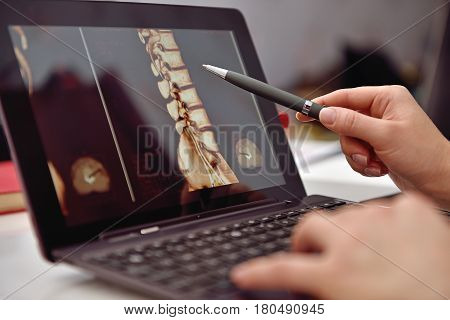Doctor Pointing To X-ray Of Patient