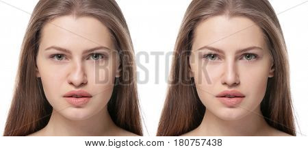 Young woman before and after rhinoplasty on white background. Plastic surgery concept