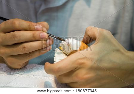 Dental Prosthetics, Color Image, Horizontal Image, Indoors