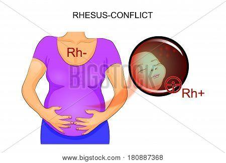 vector illustration of RH-conflict pregnant. negative RH factor mother